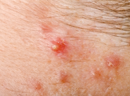 Acne on human hairy skin closeup photo