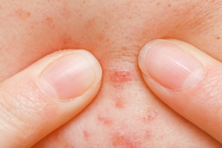 squeeze: Squeezing pimple to clean the skin closeup