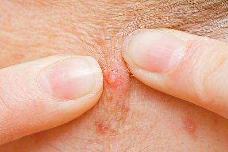 pus: Spremitura brufolo per pulire la pelle primo piano