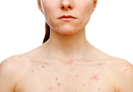varicella: Portrait of woman showing her pimples on isolated white background