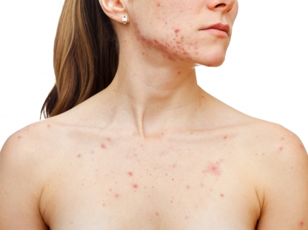 DERMATOLOGY: Portrait of woman showing her pimples on isolated white background