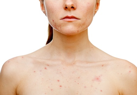 Portrait of woman showing her pimples on isolated white background