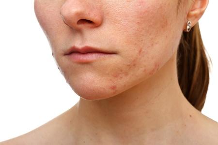 pus: Ritratto di giovane ragazza con il problema di pelle su sfondo bianco isolato