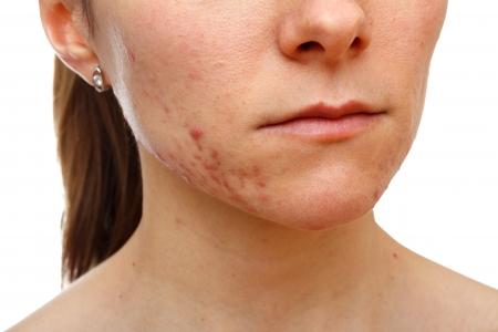 Portrait de jeune fille avec des problèmes de peau sur fond blanc isolé Banque d'images