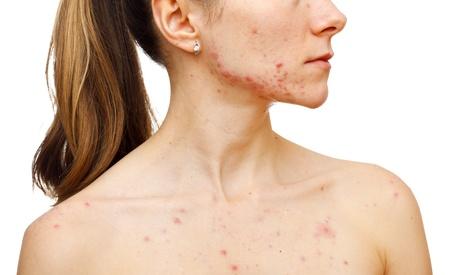 varicelle: Portrait d'une femme montrant ses boutons sur fond blanc isol�