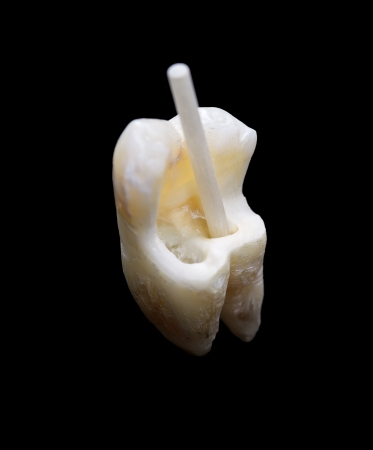 dental resin: Extracted molar tooth with fiber resin post