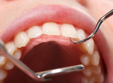 healthy teeth: Peri�dico examen dental completo para tener una boca sana y dientes