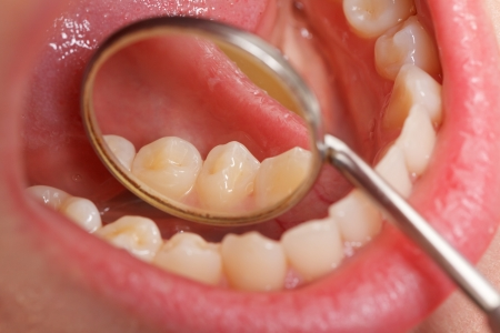 oral: Periodic comprehensive dental examination to have a healthy mouth and teeth