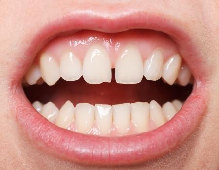 femme bouche ouverte: Diastème entre les incisives supérieures est une caractéristique normale