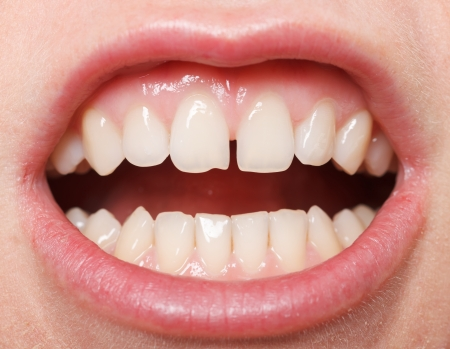 woman open mouth: Diastema between the upper incisors is a normal feature Stock Photo