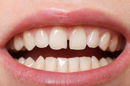 gap: Diastema between the upper incisors is a normal feature Stock Photo