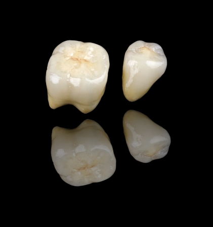 prosthodontics: The ceramic crowns reflections on black backgrounds