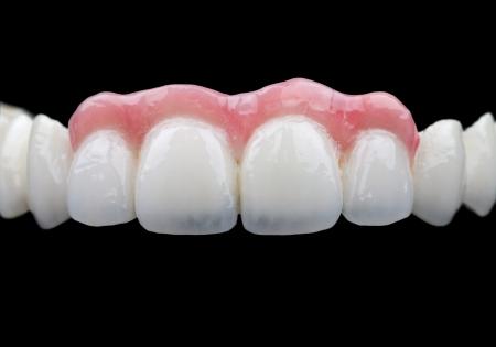 laboratorio dental: El puente de porcelana sobre fondo negro aislado Foto de archivo