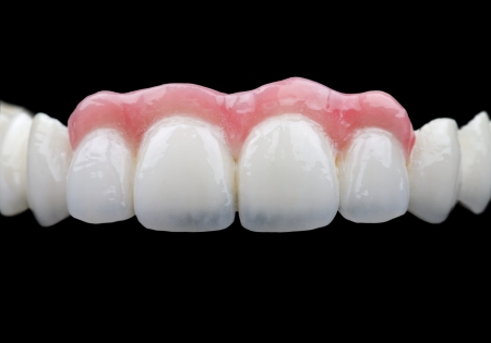 prosthodontics: The porcelain bridge on isolated black background