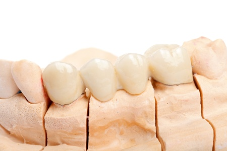 molares: Dientes pulidos con el hombro en el modelo de yeso