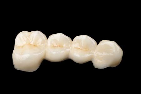 prosthodontics: Il ponte in ceramica su sfondo nero isolato