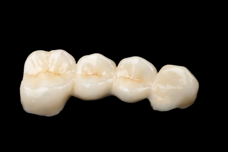 prosthodontics: The ceramic bridge on isolated black background Stock Photo