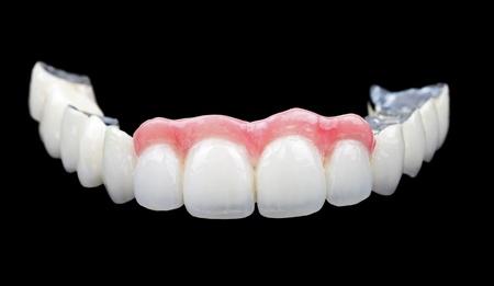 dentier: Le pont de porcelaine sur fond noir isolé Banque d'images