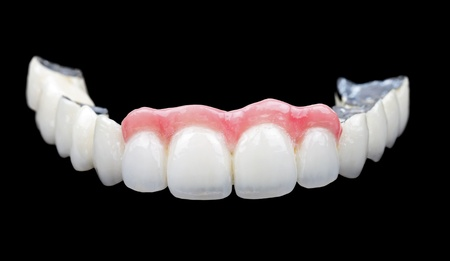 dentistry: The porcelain bridge on isolated black background