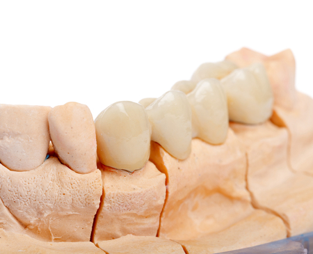 Teeth polished with shoulder on the gypsum model photo