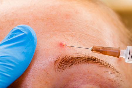 Acne treatment with injection on the sebaceous glands photo