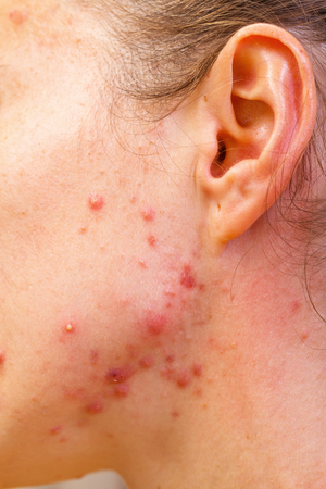 overproduction: Acne skin because the disorders of sebaceous glands productions Stock Photo