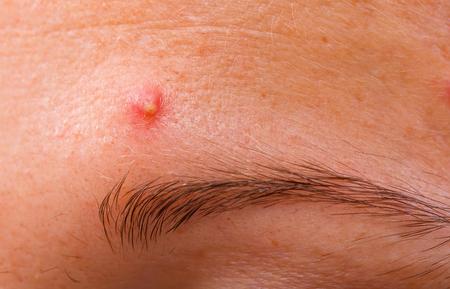 Die infizierte pustulöse Akne auf der Stirn