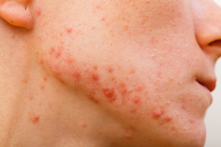 varicella: Acne skin because the disorders of sebaceous glands productions Stock Photo
