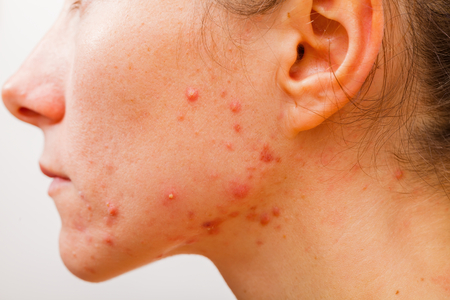 Acne skin because the disorders of sebaceous glands productions photo