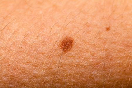 benign: Close up photo of a naevus benign on the forearm