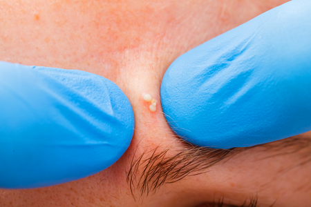 cystic: Squeezing the infected pustulous acne to inoculation Stock Photo