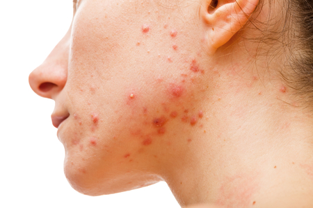 cystic: Acne skin because the disorders of sebaceous glands productions Stock Photo