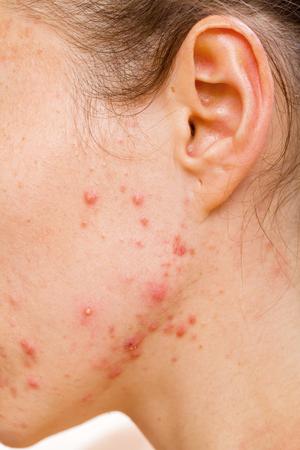 Akne-Haut, weil die Störungen der Talgdrüsen Produktionen