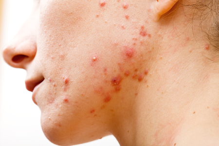 Acne skin because the disorders of sebaceous glands productions Stock Photo