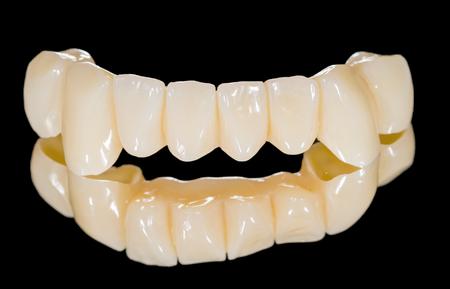dentadura postiza: Puente frontal de cer�mica en el fondo negro aislado