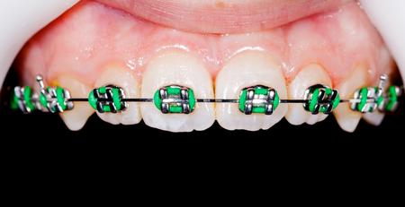 prosthodontics: Close up photo of teeth with orthodontic braces