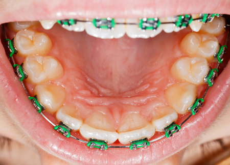fix jaw: Close up photo of teeth with orthodontic braces