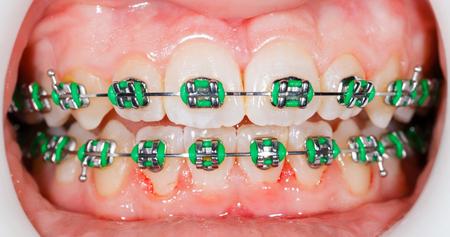 prosthodontics: Closeup photo of orthodontic braces on teeth