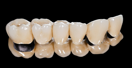 molars: Dental ceramic bridge on isolated black background Stock Photo