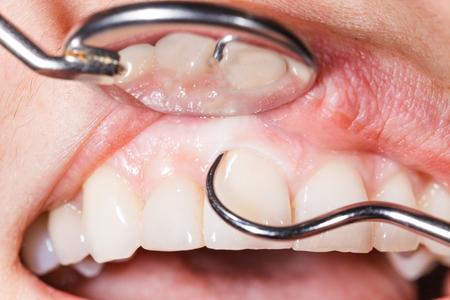 boca sana: Examen dental peri�dica para tener una boca y dientes sanos.