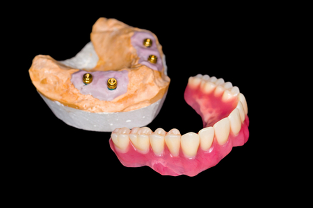 Removable denture and gypsum model on isolated black background