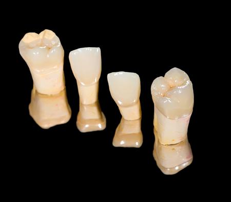 Corone in ceramica dentali su sfondo nero isolato Archivio Fotografico