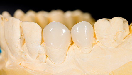 Aesthetic ceramic veneers on the front teeth  Banco de Imagens