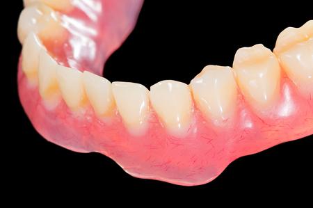 prosthodontics: Protesi inferiore artificiale isolato nero Archivio Fotografico