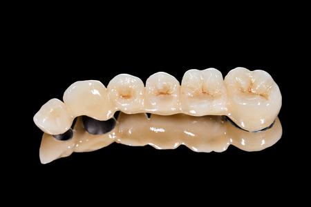 Dental ceramic bridge on isolated black  Archivio Fotografico