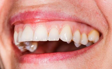 femme bouche ouverte: Beau sourire et des dents d'une jeune femme