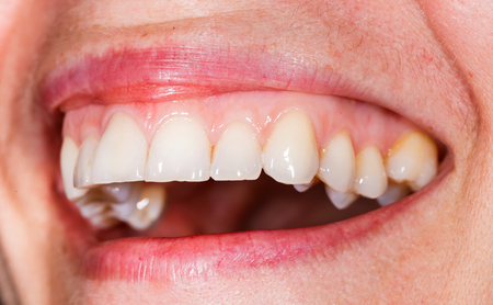 periodontics: Beautiful smile and teeth from a young woman