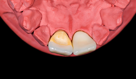 Ceramic incisor crown and veneer on red gypsum model Stock Photo