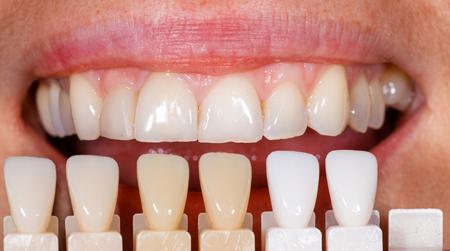 laboratorio dental: Shade determinación con la ayuda de una guía de tonos Foto de archivo