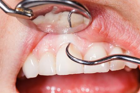 Regelmäßige zahnärztliche Untersuchung, einen gesunden Mund und Zähne.